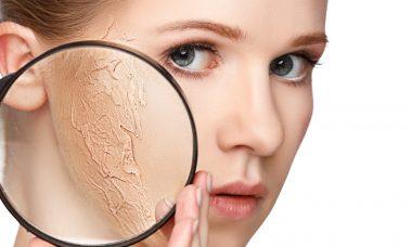 Mujer con piel seca