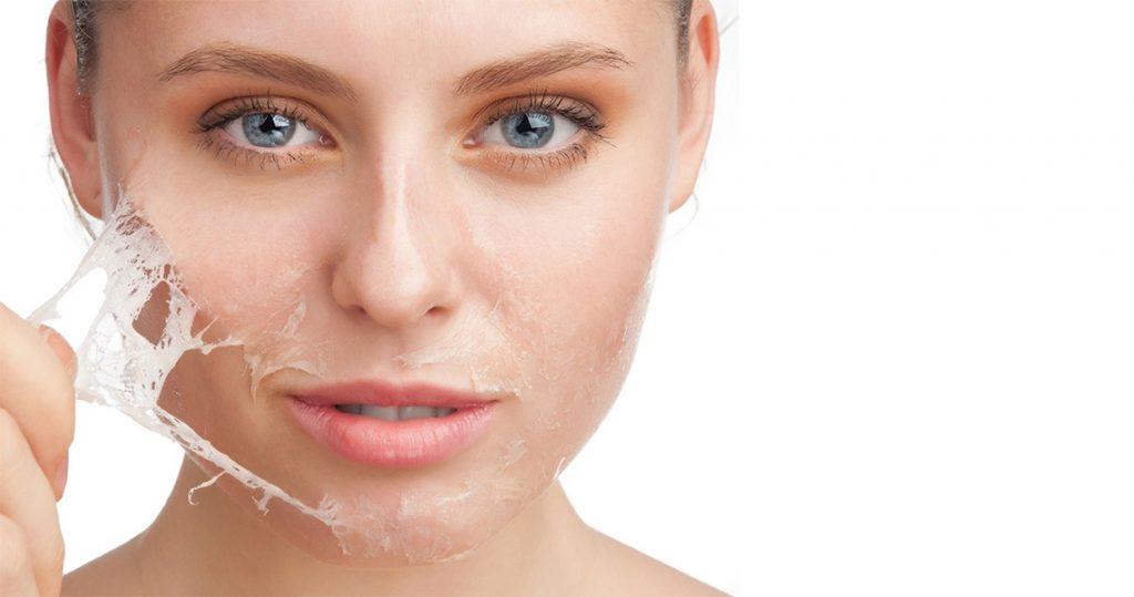 peeling faciales